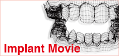 Implant movie